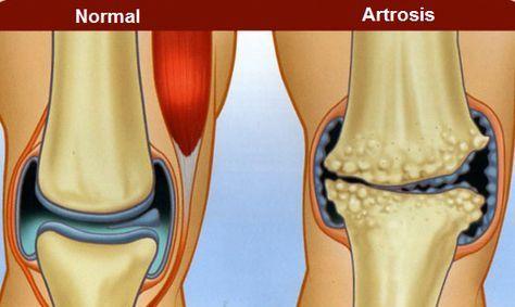 artroza-bol